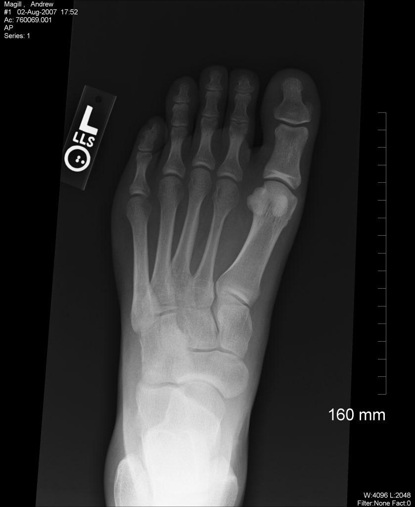 x-ray_foot_1